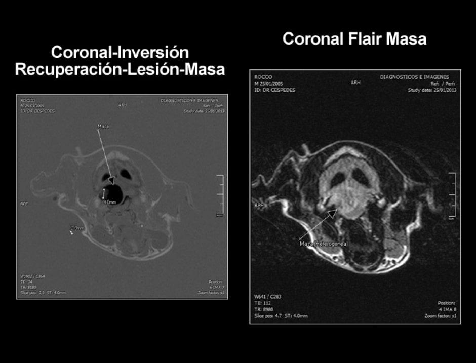 cpa-imagenes-coronal-inversion-paciente-rocco