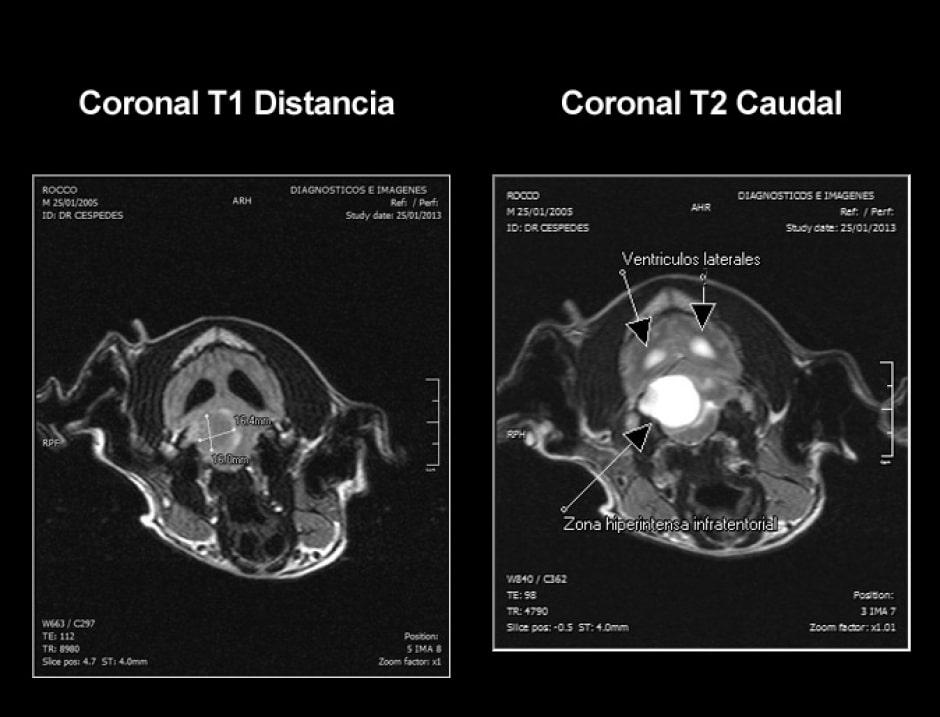 cpa-imagenes-coronal-paciente-rocco